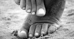 Det är inte ovanligt med stela fötter