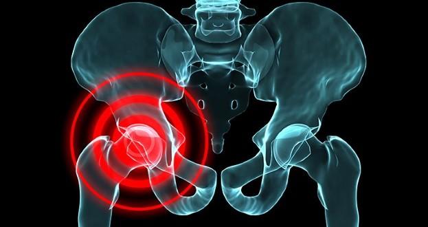 Fysisk aktivitet hjälper mot artros
