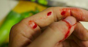 blödningsförmåga